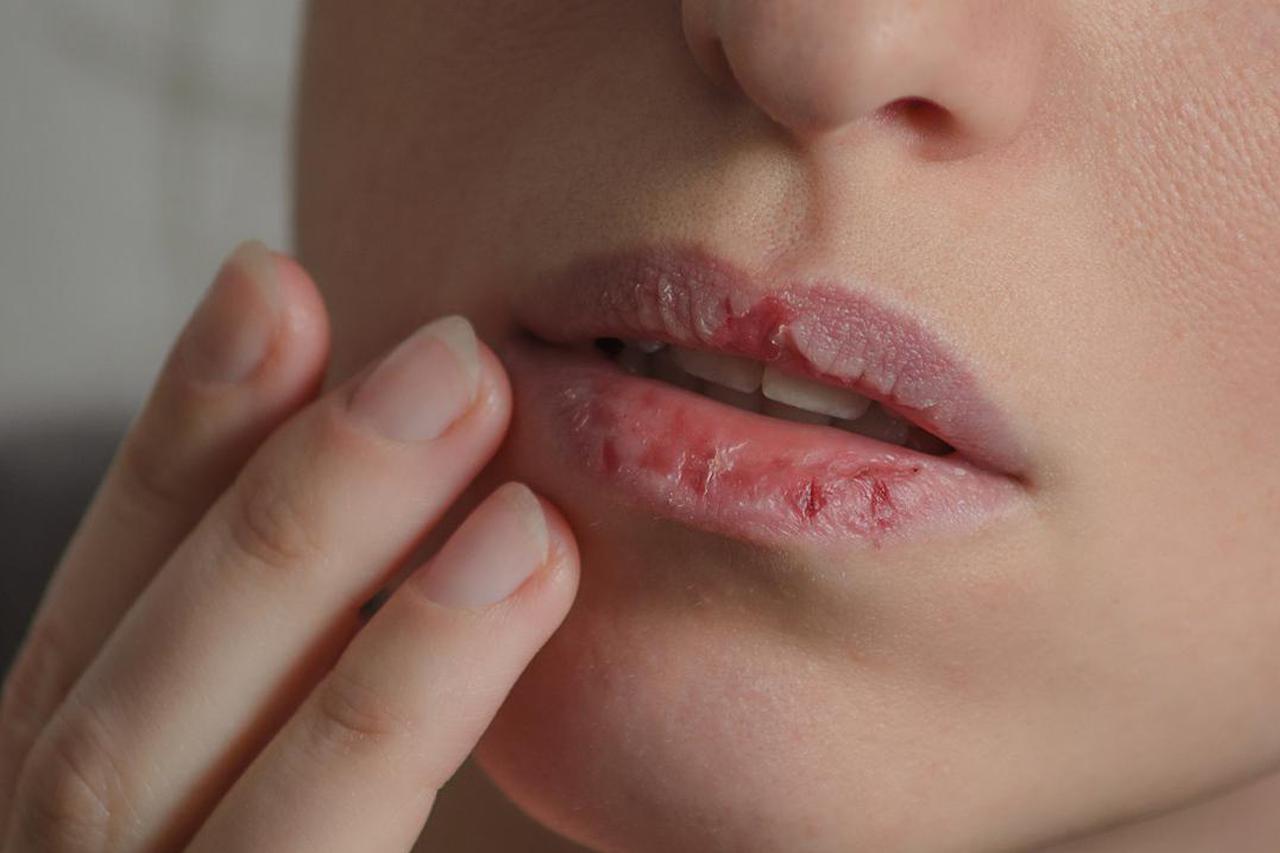 penyebab bibir kering