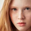 Perbedaan antara Freckles dan Flek Hitam