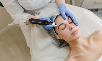 pico laser treatment